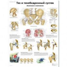 ZVR6172L Таз и тазобедренный сустав, анатомия и патология,  плакат 50х67 см