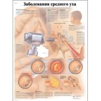 ZVR6252L Заболевания среднего уха