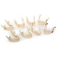 Н05 Виды переломов нижней челюсти (комплект из 8 моделей) (5х9х9 см/ 0,36 кг)