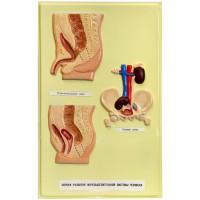 В14 Пороки развития мочевыделительной системы человека ( 1планшет, 42х66 см)