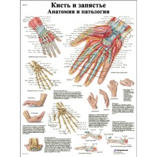 ZVR6171L Кисть и запястье, анатомия и патология