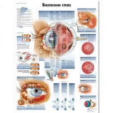 ZVR6231L Болезни глаз